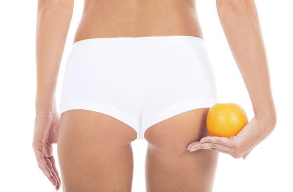 Piel de naranja - carboxiterapia